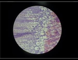 Corte histológico de um tecido ósseo