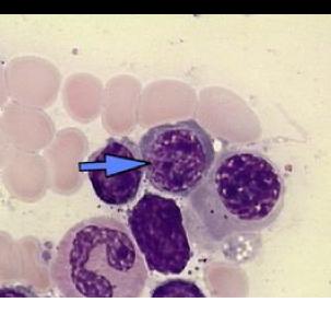 A figura indicada pela seta representa um eritroblasto, célula precursora das hemácias. Observe que esta célula ainda apresenta núcleo e mitocôndrias