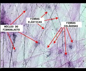 As estruturas indicadas pela seta representam o núcleo do fibroblasto e as fibras elásticas e colágenas