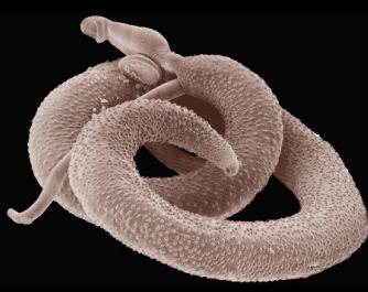 Aspecto geral de um Schistosoma